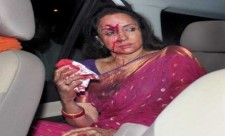 Hema Malini injured